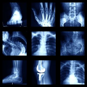 Orthopedic Pediatric Physician review All types of X-rays.
