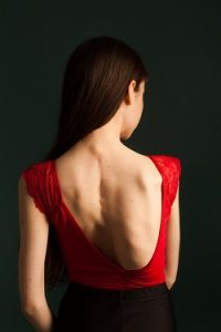 oung woman with scoliosis in dance leotard